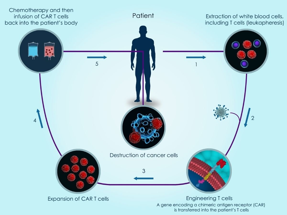 An illustration of how CAR-T cell therapy works.