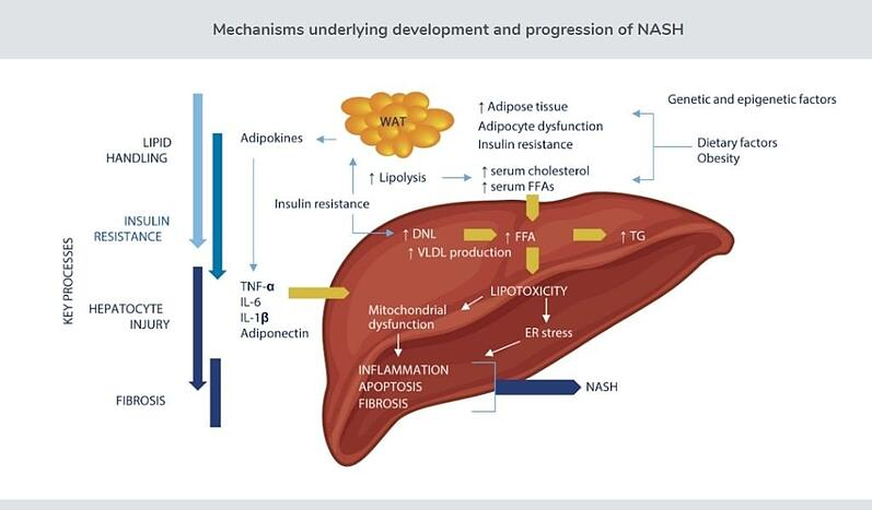 An image showing the mechanisms underlying the development and progression of NASH